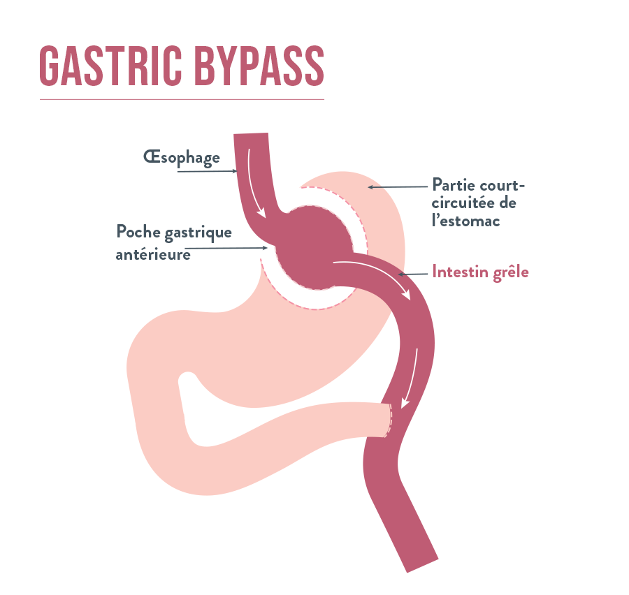 Gastric Bypass | Bariatric Advantage