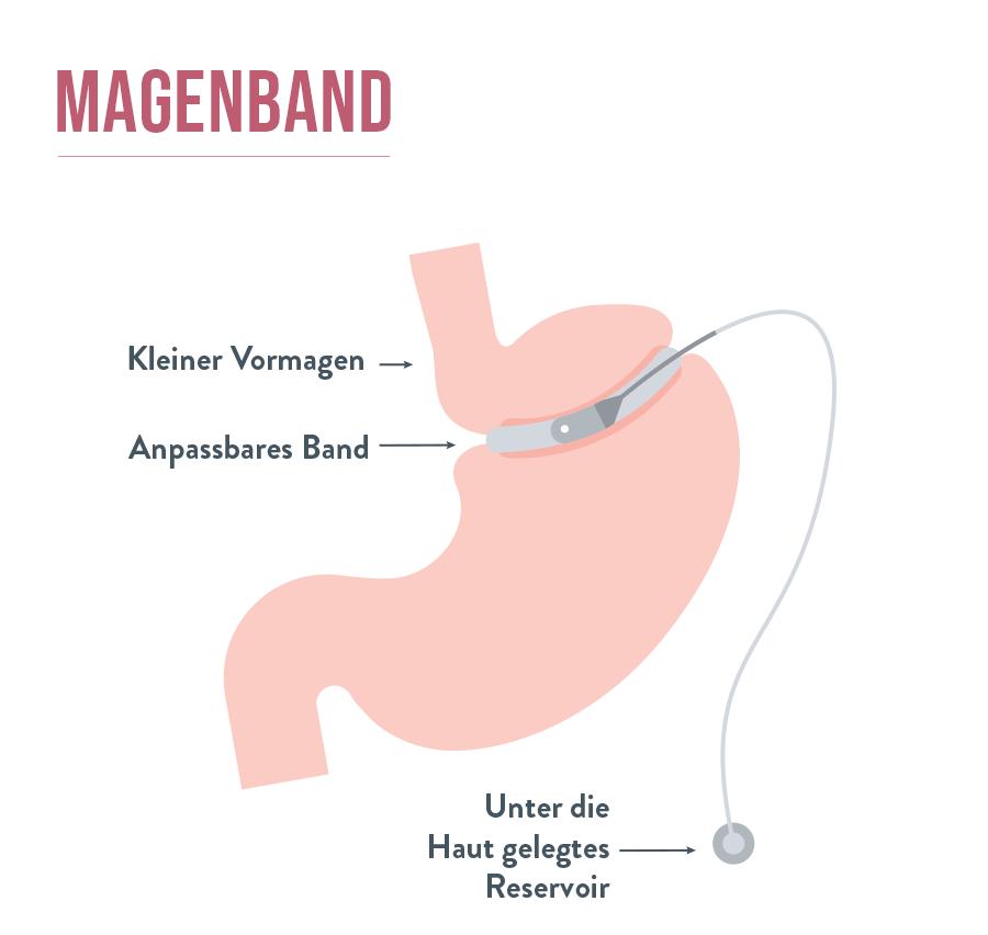 Magenband - Gastric Banding | Bariatric Advantage