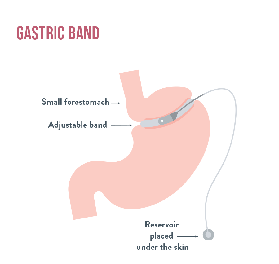 Gastric Banding | Bariatric Advantage