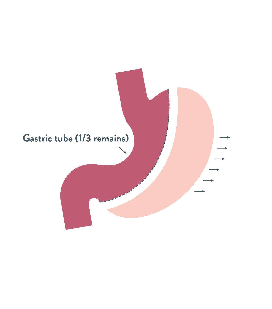 sleeve gastrectomy | Bariatric Advantage